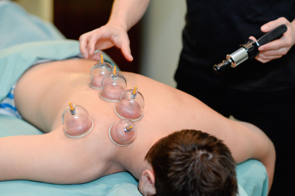 hijama-montpellier-cupping-therapy-ventouse